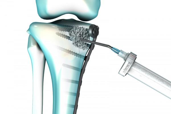 fracture-plateau-tibial-webE0C53A4A-476B-F775-4009-576A48298CFF.jpg